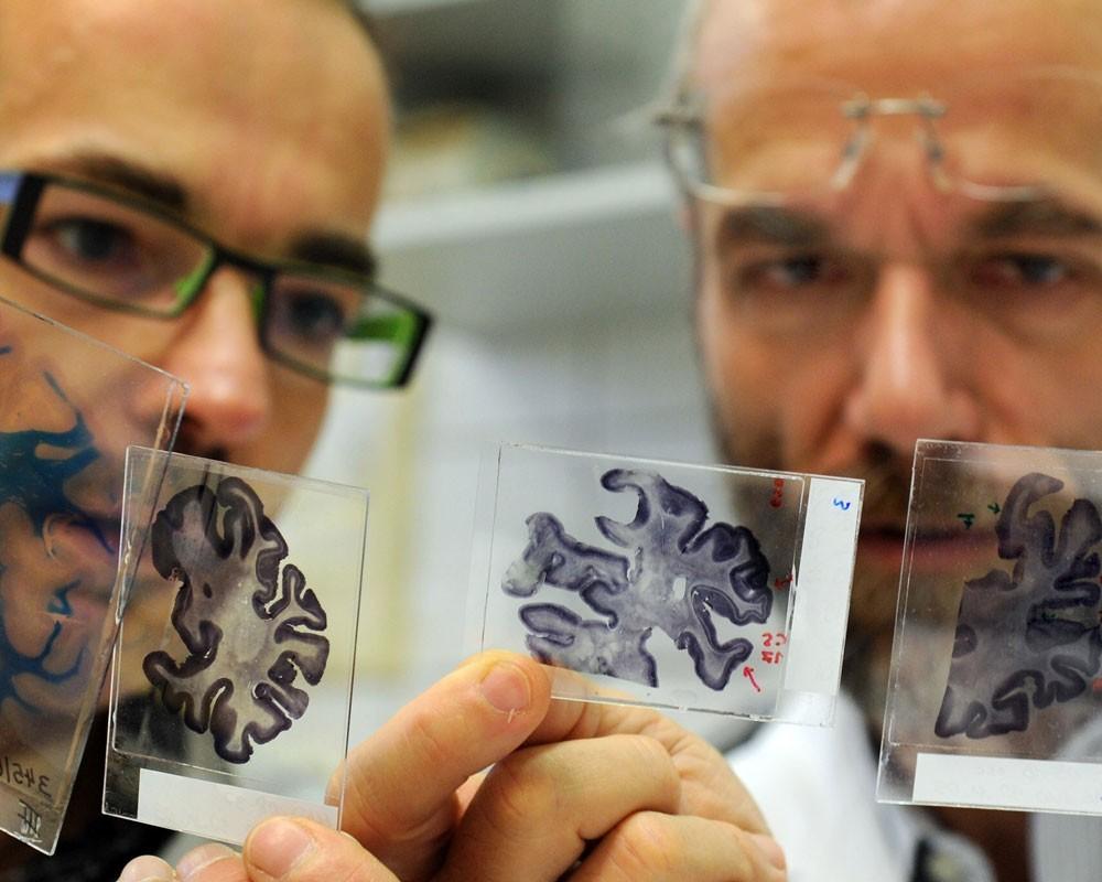 Ученые Потеря чувства юмора свидетельствует о развитии болезни Альцгеймера
