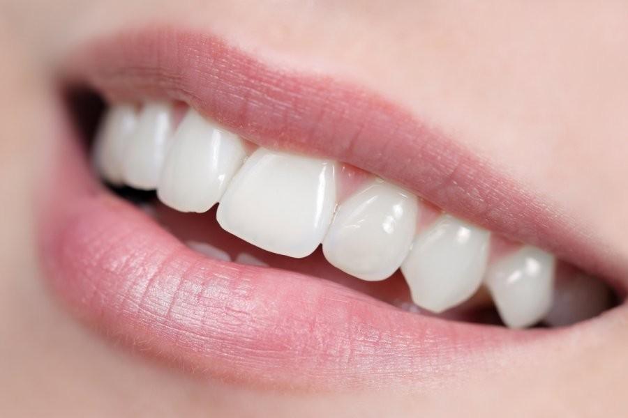 Ученые изобрели новый гель восстанавливающий зубную эмаль
