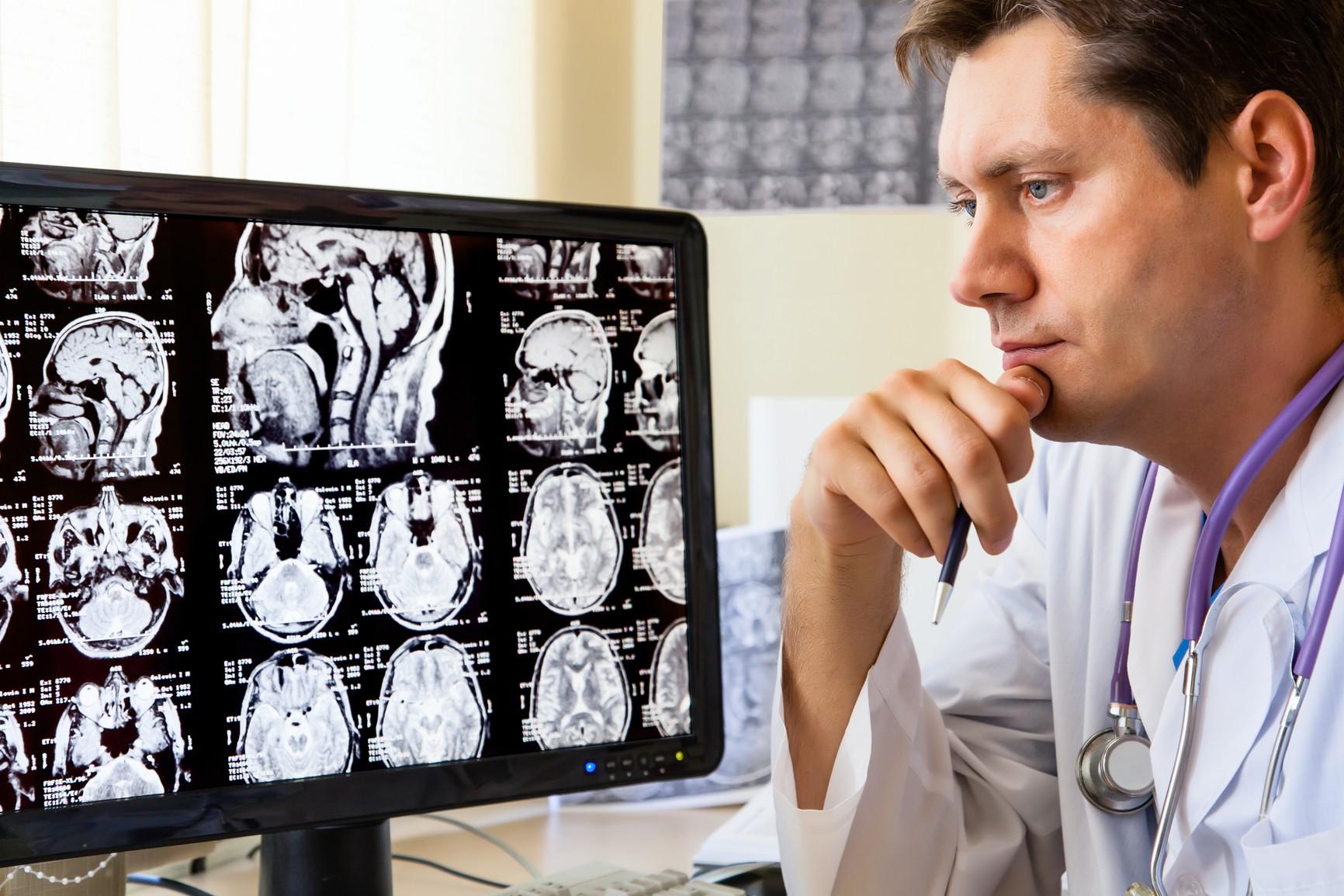 Ученые определили как кокаин влияет на человеческий мозг