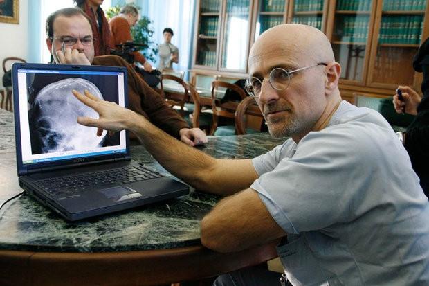 Серджио Канаверо Российские ученые участвуют в подготовке к пересадке головы