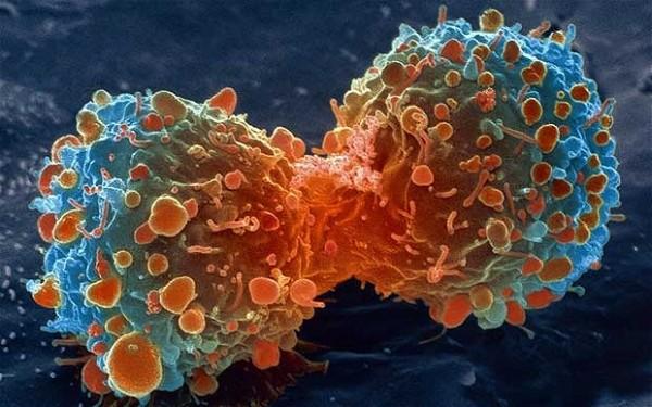 Учёные обнаружили новый способ борьбы с раком головного мозга