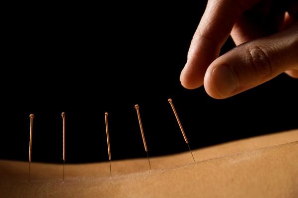Ученые: При менопаузах может помочь иглоукалывание