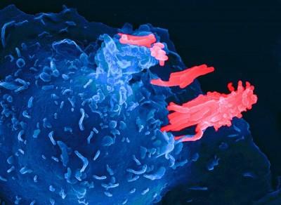 Ученые смогли найти механизмы, вызывающие чрезмерное воспаление