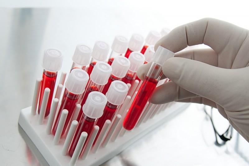 Ученые научились определять возраст человека по образцу крови
