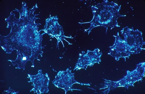 Ученые нашли нестандартные варианты лечения рака