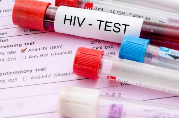 Россия стала эпицентром эпидемии ВИЧ