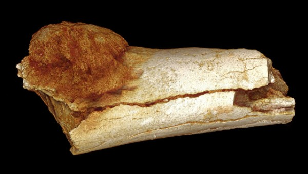 Ученые: Люди болели раком и 1,7 миллиона лет назад
