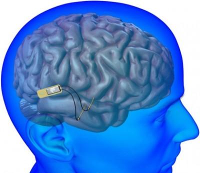 Ученые: Имплантаты помогут в лечении проблем мозгa