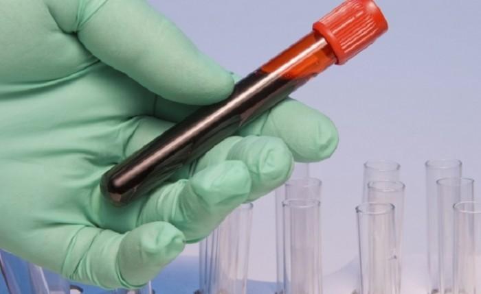 Роспотребназдор сказал о 6-ти случаях заболевания вирусом Зика вРФ