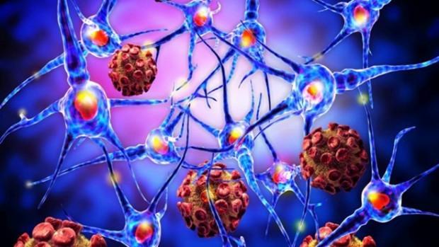 Учёные определили, как меланома распространяется поорганизму людей