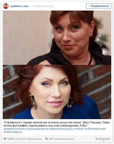 Роза Сябитова снова лягла под нож пластического хирурга