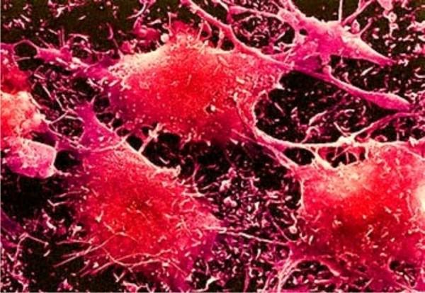 Рак стал основной причиной смерти в 12 европейских странах