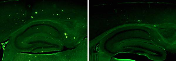 Ученые обнаружили белок, снижающий симптомы болезни Альцгеймера