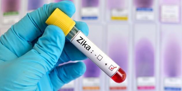 Вирус Зика распространяется через глаза ислезы— Ученые