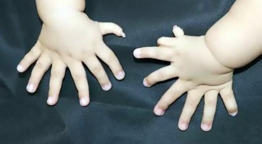 В КНР родился ребенок с31 пальцем