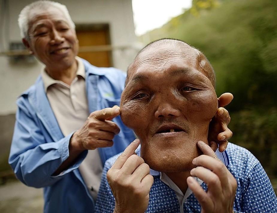 В КНР найден человек сформой головы инопланетянина