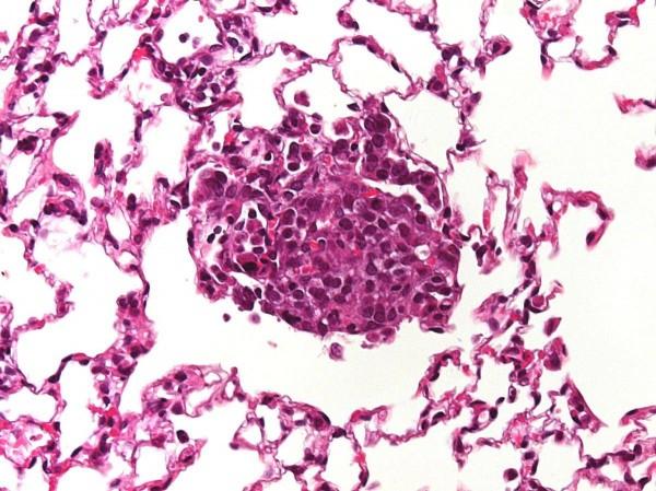 Учёные: Лекарство от меланомы успешно прошло тестирование