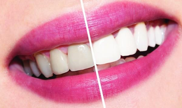 Ученые открыли новый способ отбеливания зубов