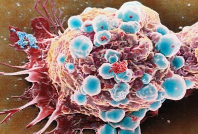 Учёные опровергли предположение, что раковые клетки являются гомогенными