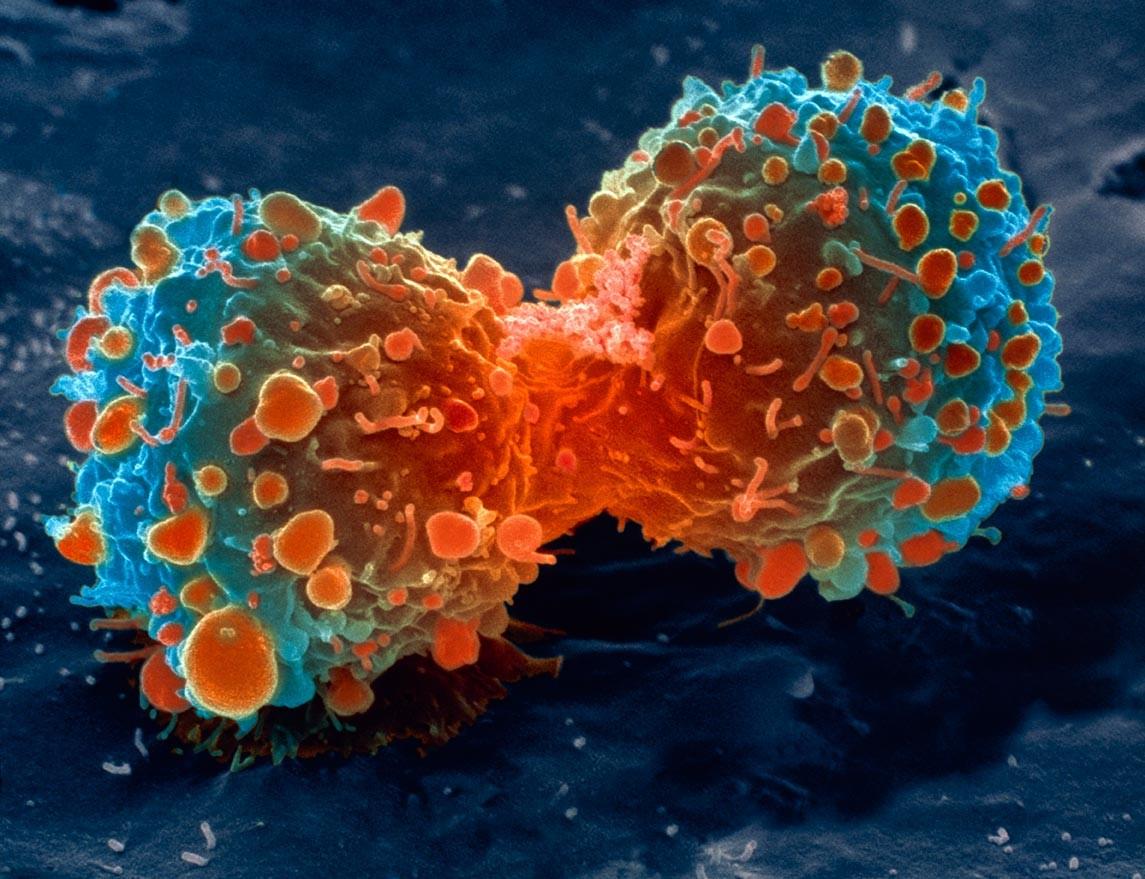 Ученые смогли отыскать генетическую связь метаболизма ирака