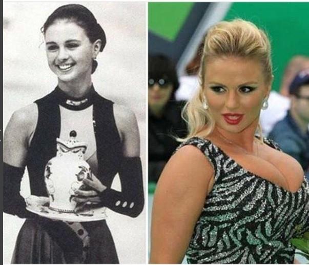 УАнны Семенович прежде была маленькая грудь