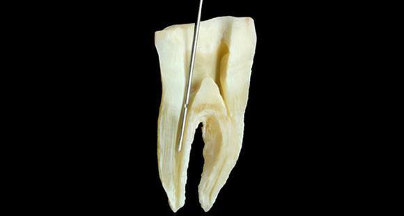 ВОмске стоматолог забыл вчелюсти пациента кусок сверла