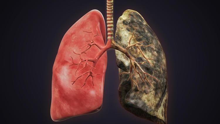 Ученые обнаружили белок, вызывающий рак легких
