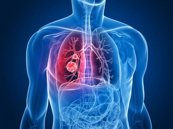 Ученые: Депрессия может влиять на развитие рака легких