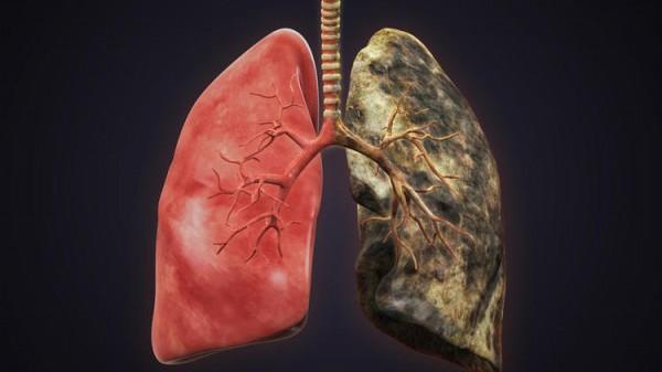 Учёные: Найден белок, вызывающий рак лёгких