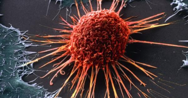 Ученые поведали, какие профессии вызывают развитие онкологии улюдей