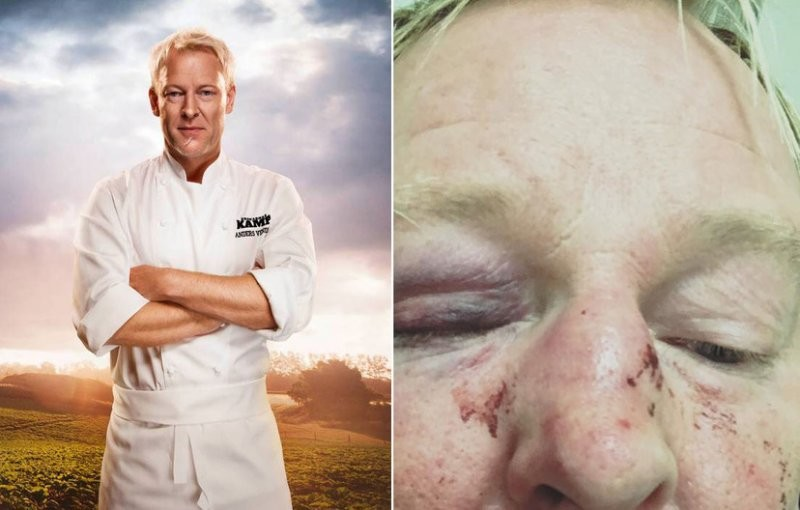 Шведского шеф-повара избили из-за схожести сТрампом