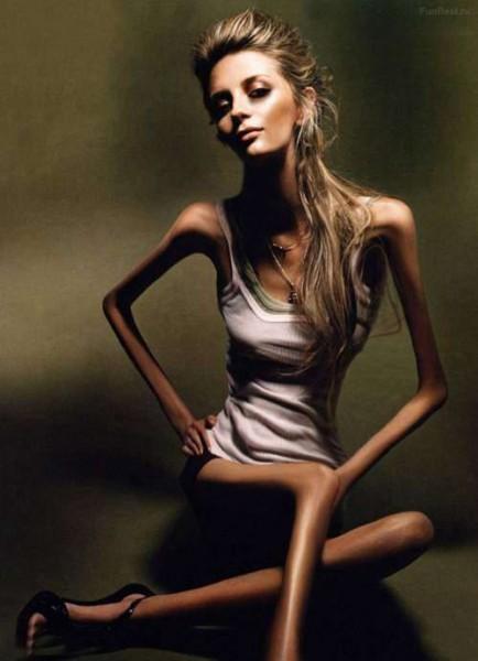 Учёные создали препарат от анорексии