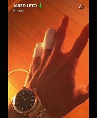Джаред Лето остался без двух пальцев левой руки