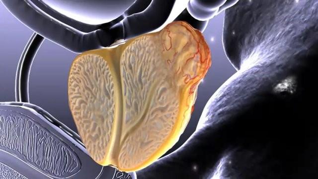 Ученые отыскали способ лечить рак простаты при помощи бактерий