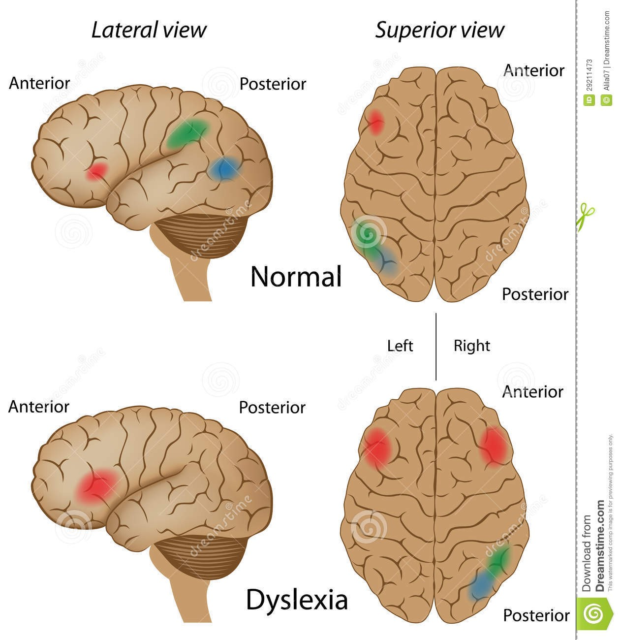 Людям сдислексией труднее научиться читать иписать— Ученые