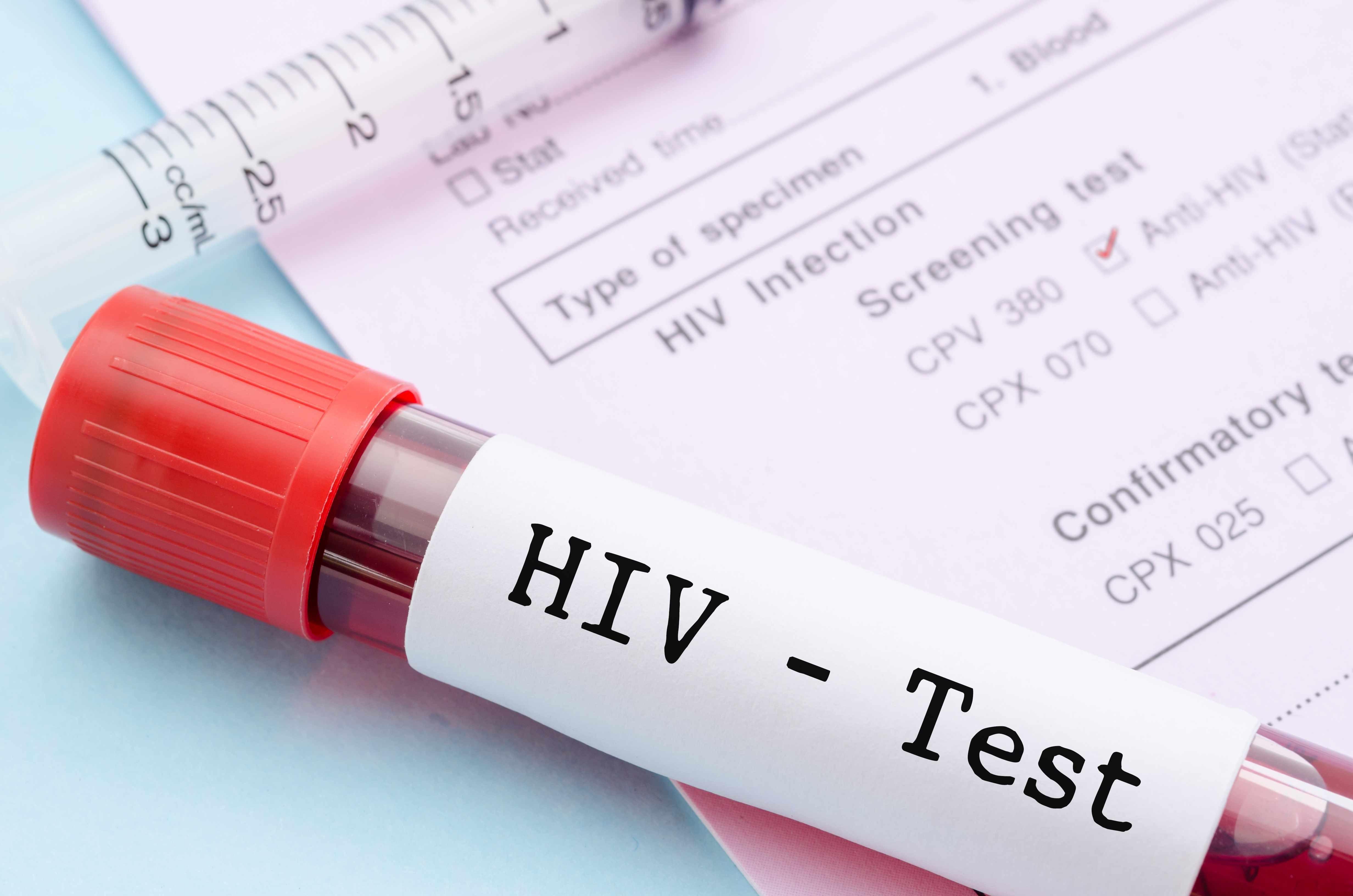 Минюст выступает против обязательной постановки научет ВИЧ-инфицированных