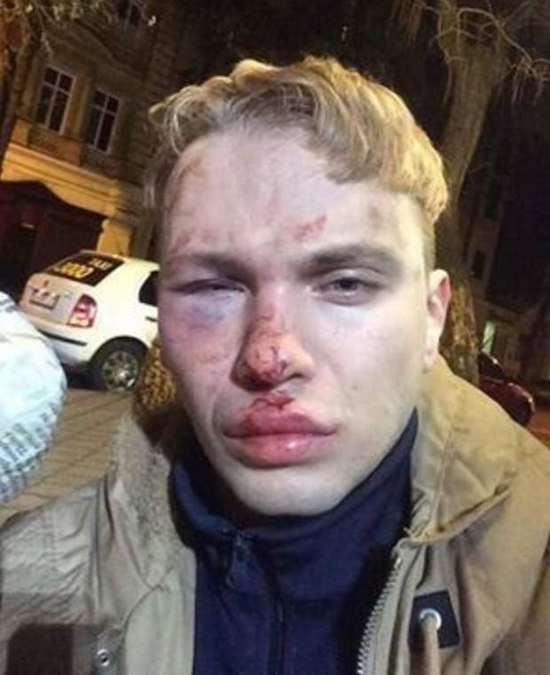 Ученика Ивана Дорна избили и ограбили в Одессе
