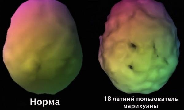 Ученые: Употребление марихуаны увеличивает риск возникновения болезни Альцгеймера