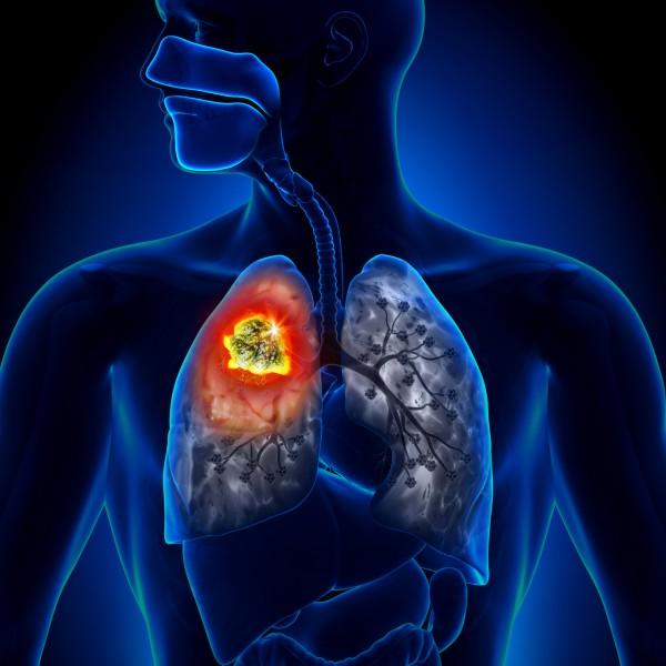 Ученые доказали, что даже не курящие женщины болеют легочными заболеваниями