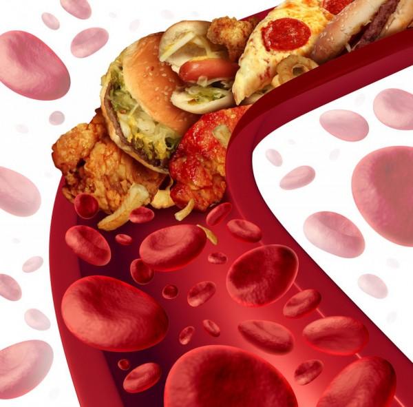 Учёные: Уменьшение уровня холестерина позволяет избавиться от смертельных болезней