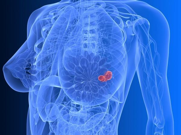 Женщины на ранней стадии рака груди борются с болью в суставах с помощью антидепрессанта