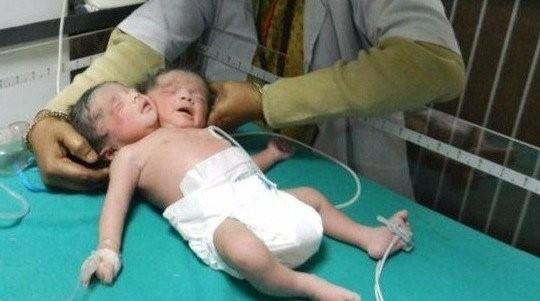 В Мексике родился младенец с двумя головами