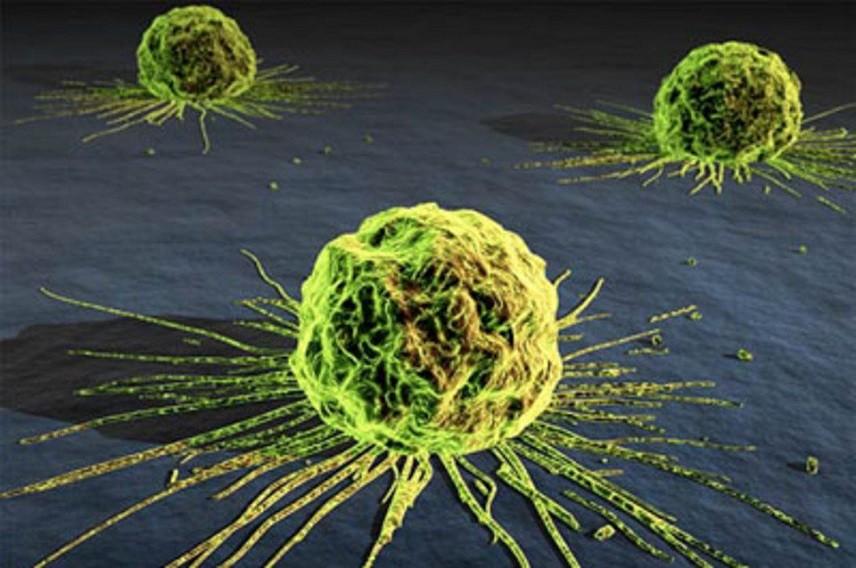 Ученые отыскали 23 гена, отвечающие заметастазы рака