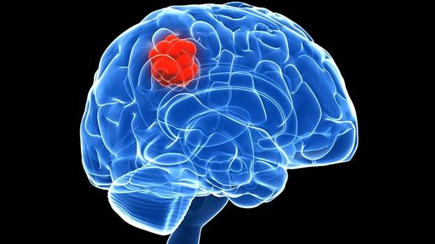 Препарат отмалярии помог побороть неизлечимую опухоль мозга упациентки вСША
