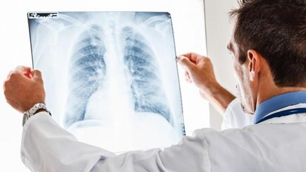 Медики рассказали о вирусе, вызывающем пневмонию