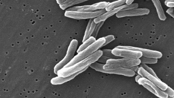Впервые за 100 лет учёными создана противотуберкулёзная вакцина