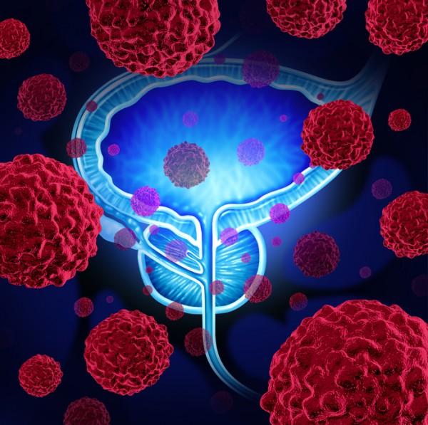 Ученые: При раке предстательной железы МРТ действует эффективнее биопсии