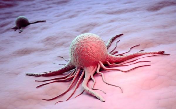 Учёные узнали, что рак способен самостоятельно передвигаться по организму