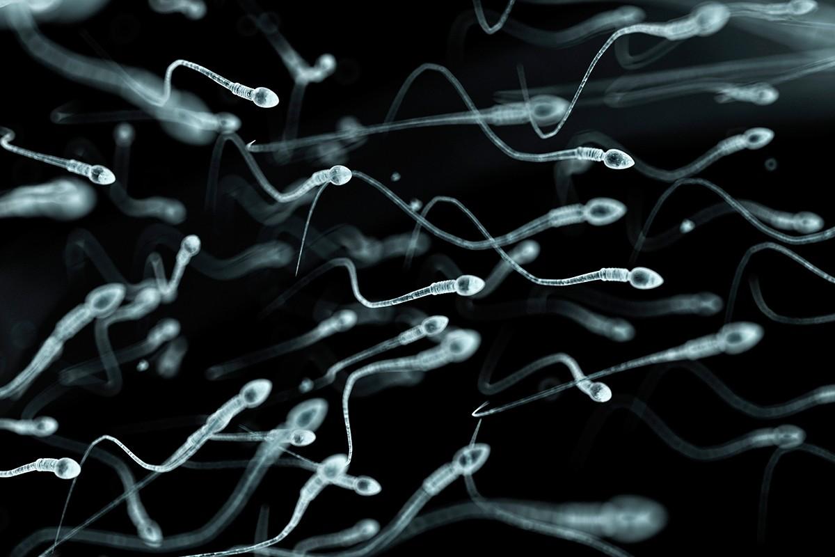 очищение спермы в россии-ыю3