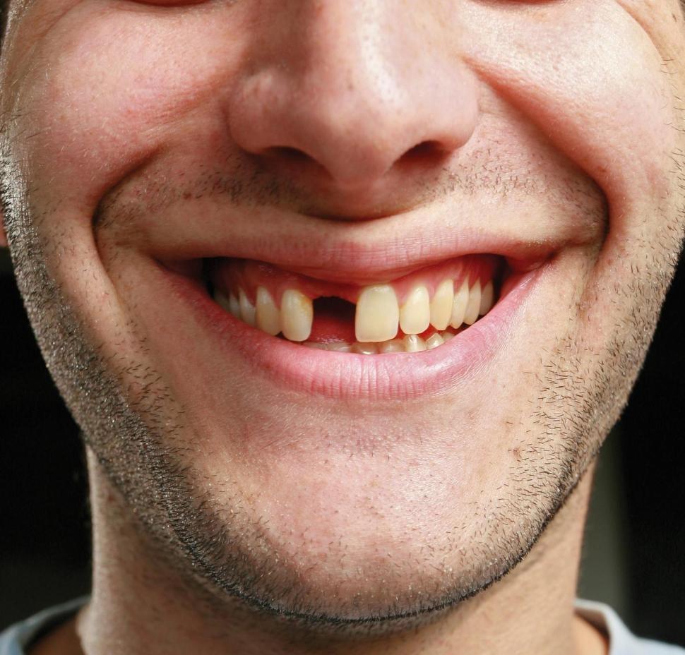 Выбитый первый зуб